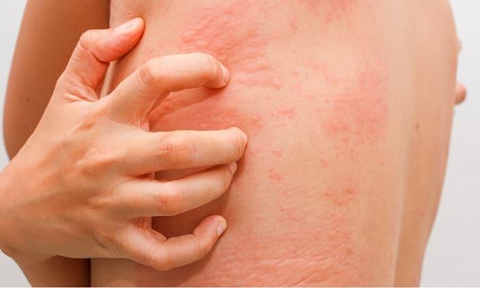 Аллергическая реакция на препарат проявляется кожной сыпью, крапивницей, зудом