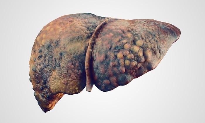 Эти препараты нельзя применять при патологиях печени
