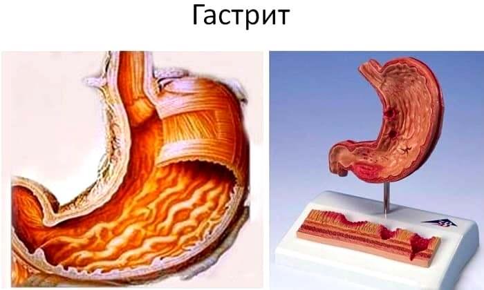 Препарат проявляет эффективность при лечении гастрита