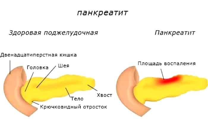 Лекарственное средство используется для купирования спазмов гладких мышц при панкреатите