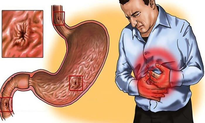 Бифидум БАГ включают в состав комплексного лечения язвы желудка и двенадцатиперстной кишки, хронического панкреатита и т.д