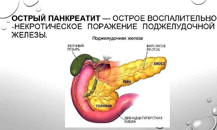 Острая форма панкреатита является ограничением к приему лекарства