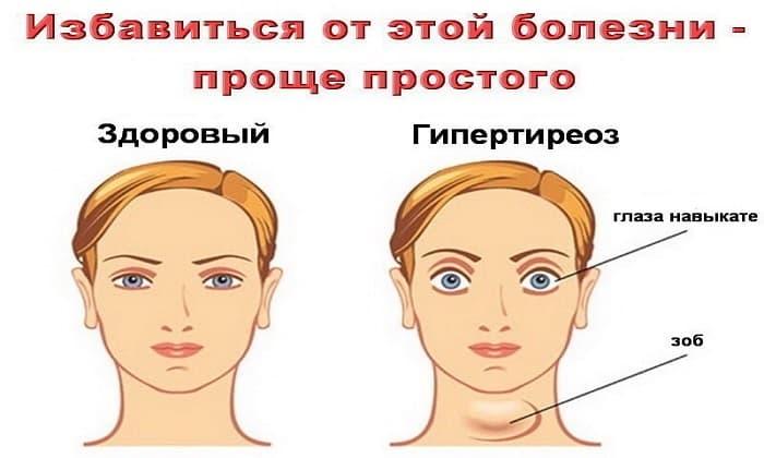 Левокарнил назначается при невыраженном гипертиреозе