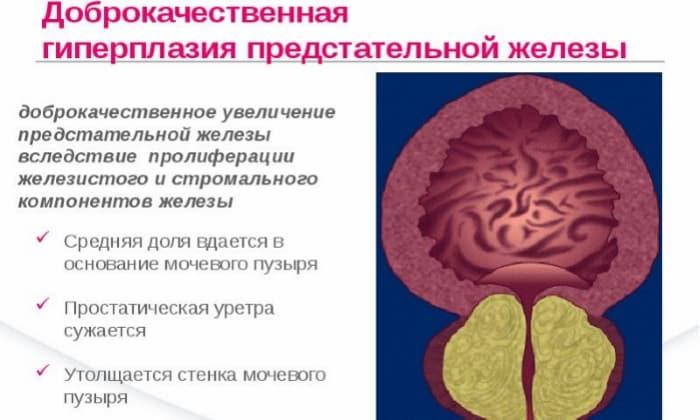 Нежелательно применять препарат при гиперплазии предстательной железы доброкачественного характера