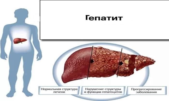 Препарат противопоказан при гепатите