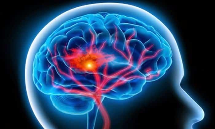 нарушения кровотока в головном мозге
