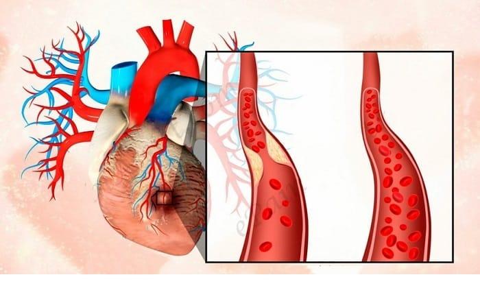 Препараты Мексидол и Этоксидол применяются в комплексной терапии при ишемической болезни сердца