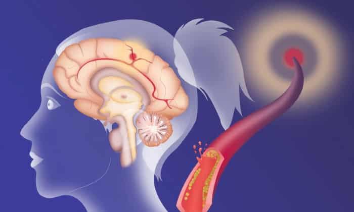 Мексидол и Этоксидол назначаются при нарушениях мозгового кровообращения