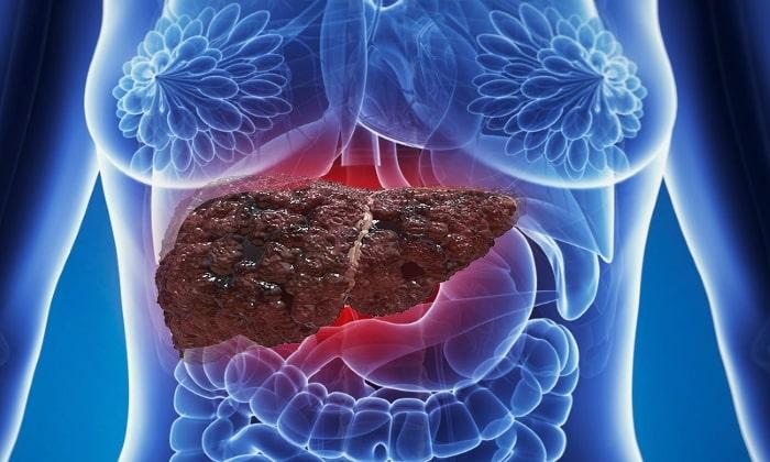 Препарат назначается в случае диагностирования цирроза печени