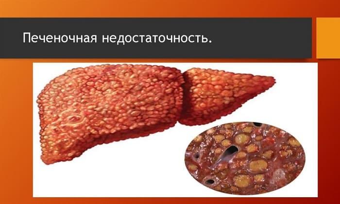 Панкреатин противопоказан при тяжелой недостаточности печени