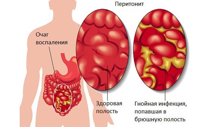 Препарат показан при перитоните