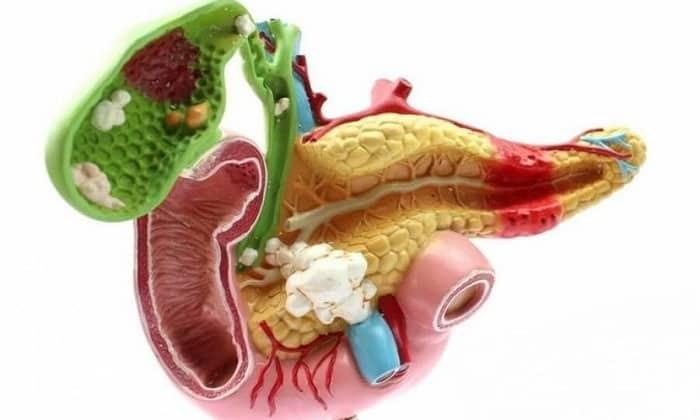 Также препарат помогает в лечении панкреатита