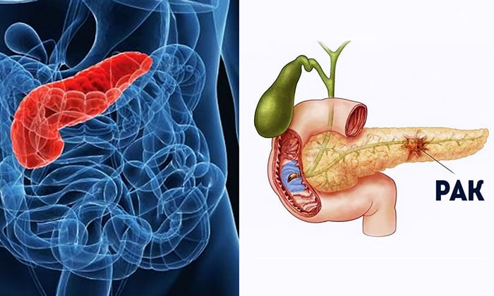Пангрол 25000 прописывают при лечении рака поджелудочной железы