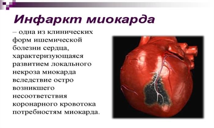 Оба препарата назначают при инфаркте миокарда.