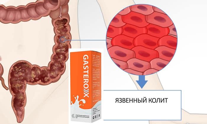 Препарат Gasterox назначается при колите