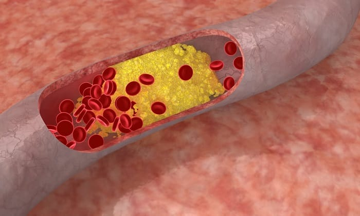 Средство способствует уменьшению уровня холестерина в крови