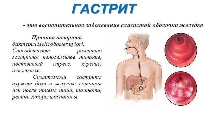 Левокарнитин прописывают при гастрите с пониженным уровнем кислотности