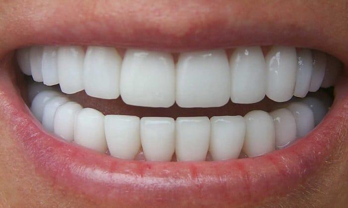 Во время стоматологических процедур можно использовать аминометилбензойную кислоту