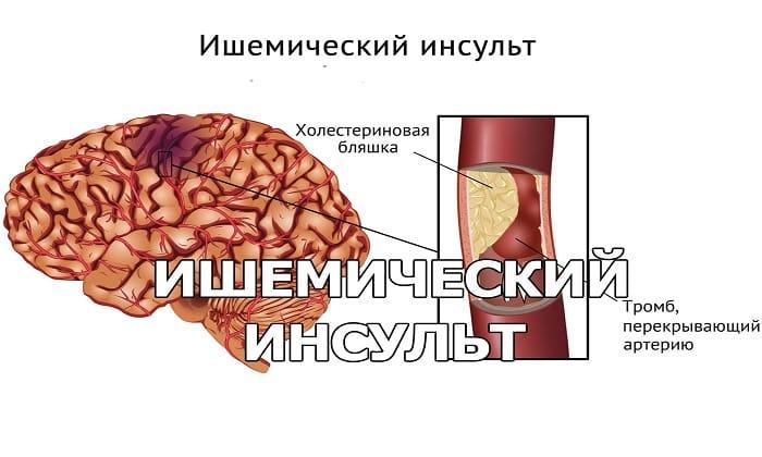 Остаточные явления после инсульта - показание к применению препарата Мексидол