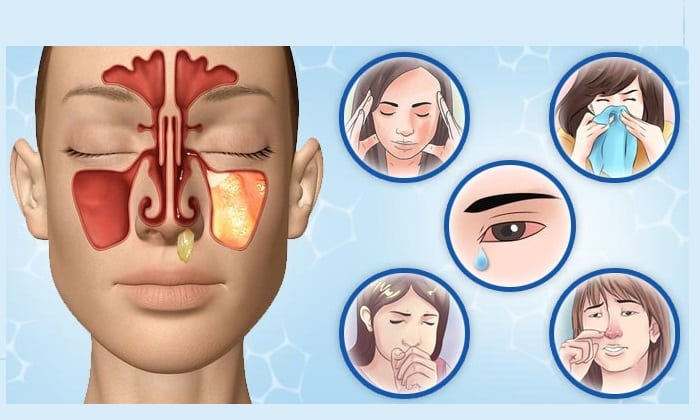 Аллергические реакции - побочное действие препарата Винпоцетин