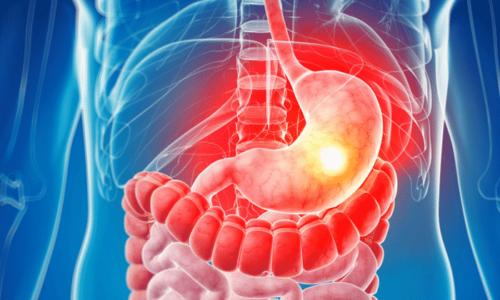 Витамин B1 в составе добавки поддерживает пищеварительный тракт, что особенно полезно при диетах