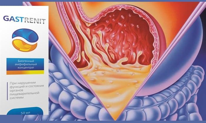 Показанием к применению препарата Gastrenit считается нарушения кислотности желудка
