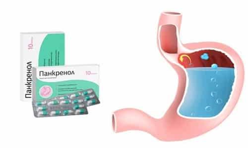 Панкренол относится к лекарственному средству, которое не только устраняет дискомфорт в желудочно-кишечном тракте, но и борется с причинами его возникновения