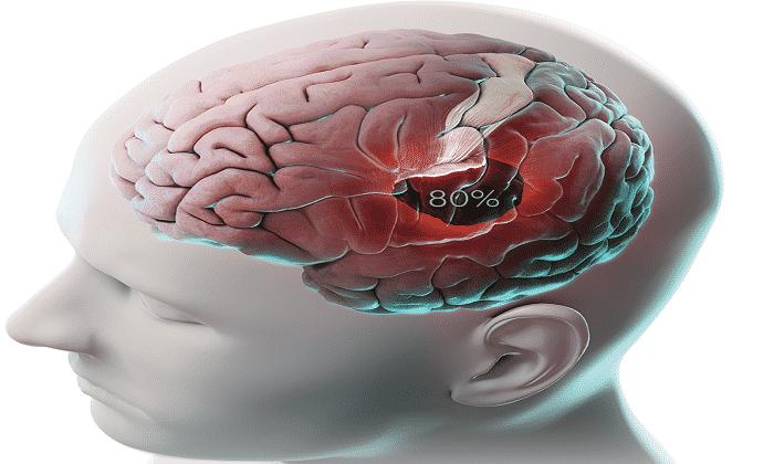 Показанием к применению являются черепно-мозговые травмы