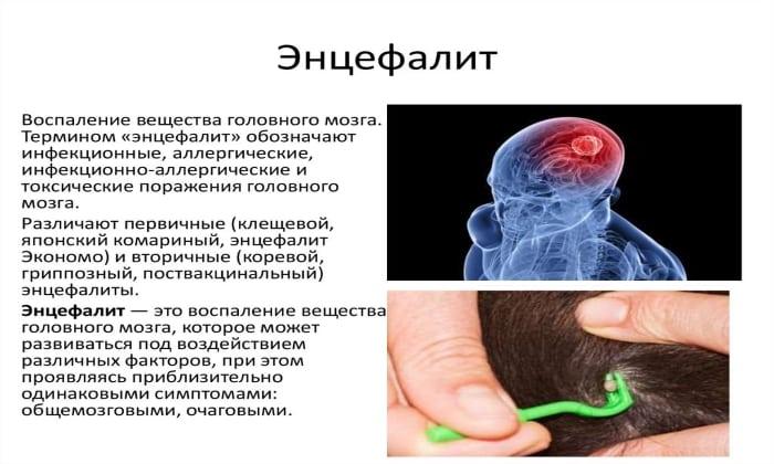 Показанием к использованию Мидокалма является энцефалит