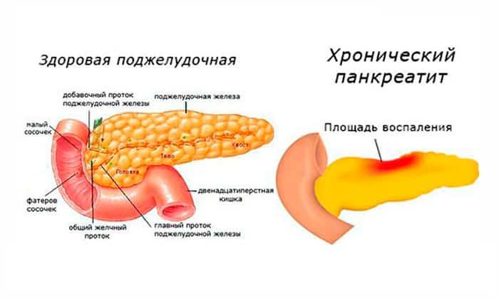 Микразим показан при хроническом панкреатите