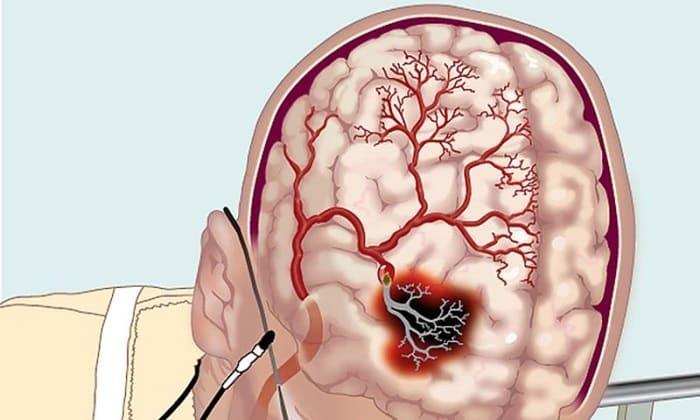 Данные два препарата назначаются при гипертонической энцифалопатии
