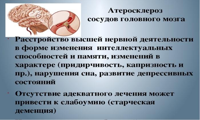 Мексидол назначают при атеросклерозе сосудов головного мозга