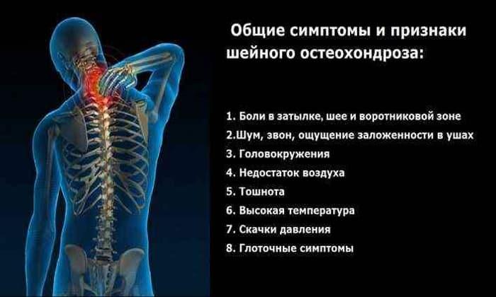 Показанием к использованию Мидокалма является остеохондроз шейного отдела позвоночника
