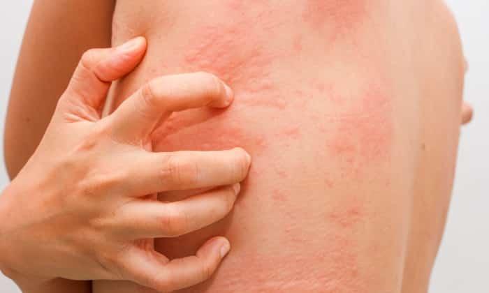 От препарата может возникнуть побочный эффект в виде кожной сыпи