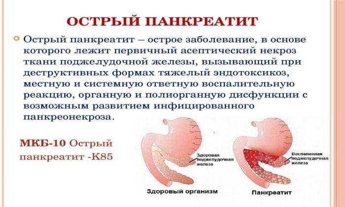 Препарат часто применяют как вспомогательное средство в комплексной терапии при панкреатите