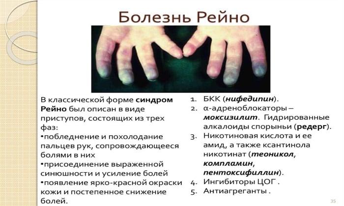 Показанием к использованию Мидокалма является болезнь Рейно
