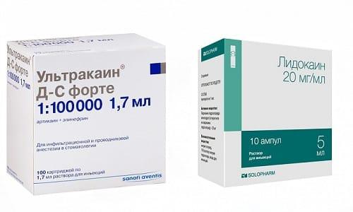 При обострении заболеваний, в процессе стоматологического лечения и при проведении несложных хирургических манипуляций необходимо применять обезболивающие препараты Ультракаин или Лидокаин